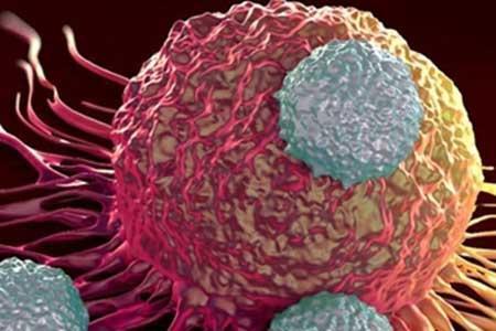 چطور توده سرطانی پستان را تشخیص دهیم؟