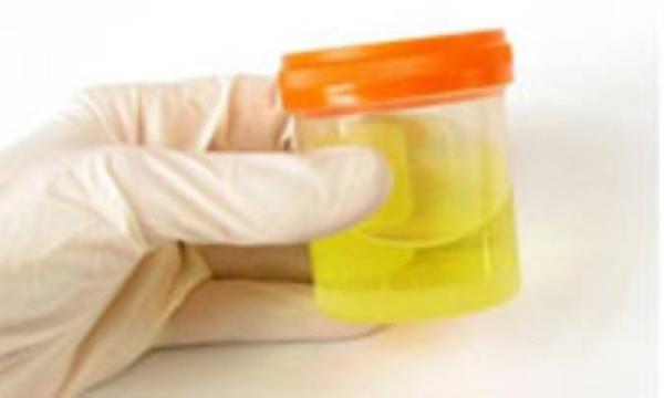 دیابتی ها و آزمایش ادرار 24ساعته